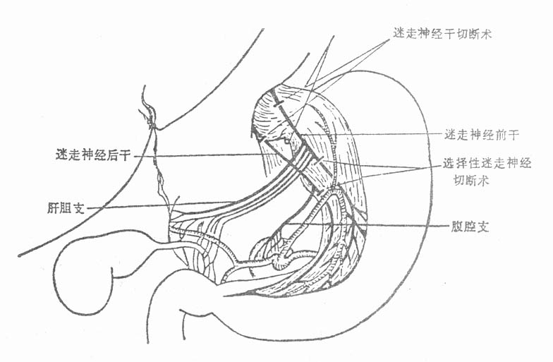 50 迷走神经切断手术示意图-第一节 溃疡病的外科治疗