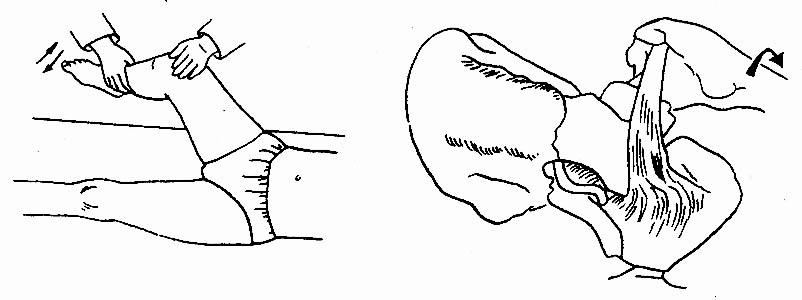 急性阑尾炎