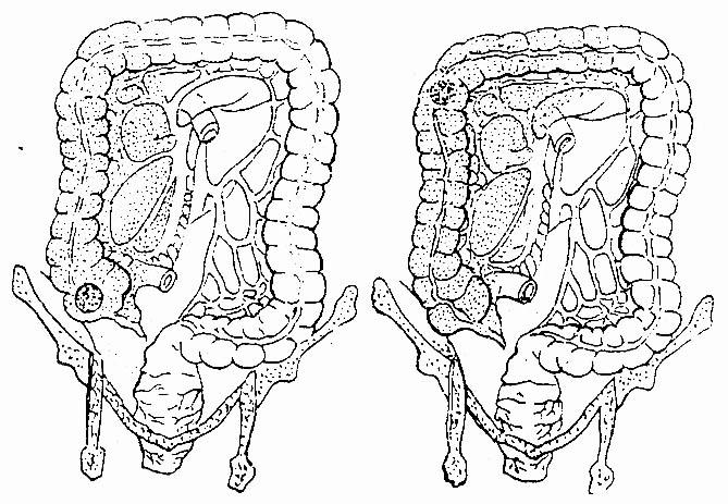 右半结肠癌切除术_第一节 结肠癌