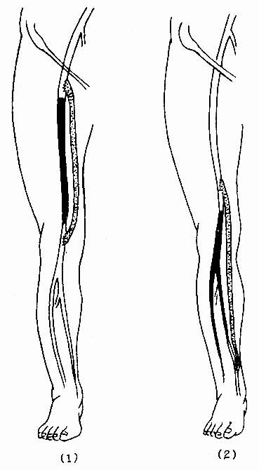手绘全身动脉位置图